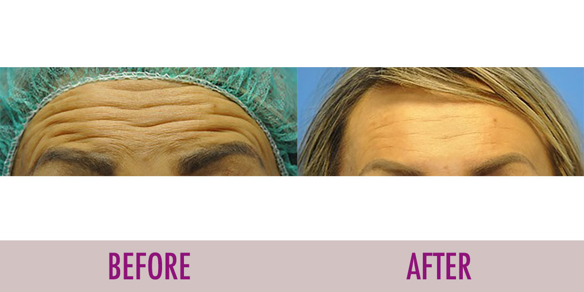 before after botox forehead