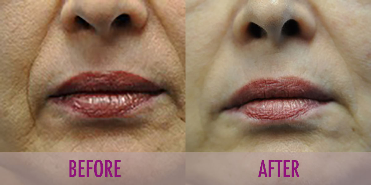 before-after-juvederm
