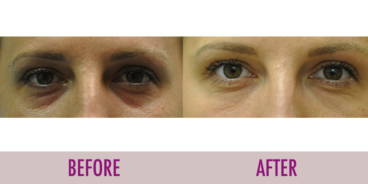 tear through before and after Juvederm XC treatment