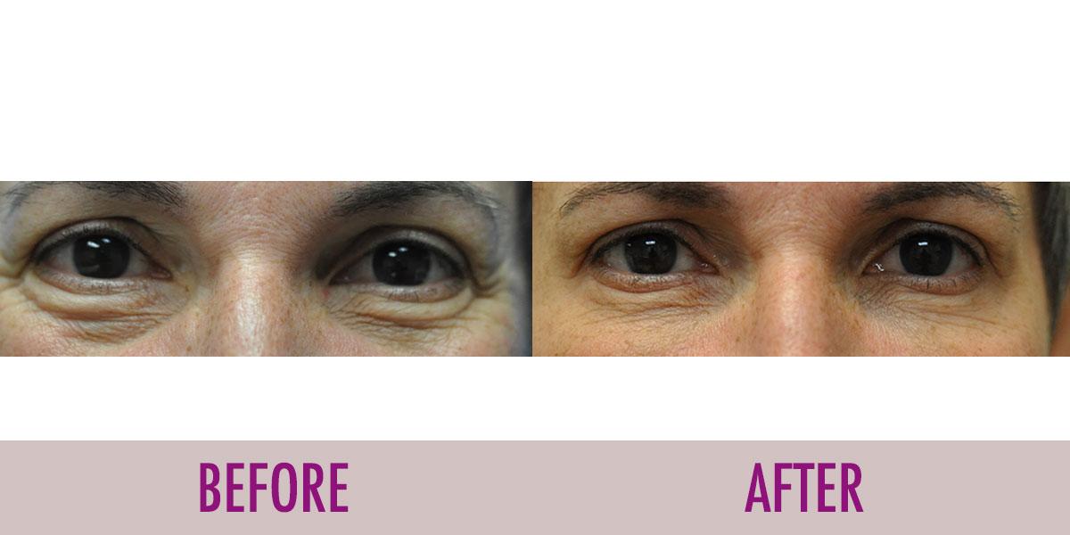 juvederm-under-eyes-before-after