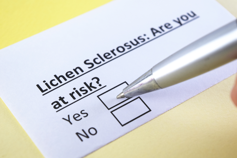 how to get rid of lichen sclerosus
