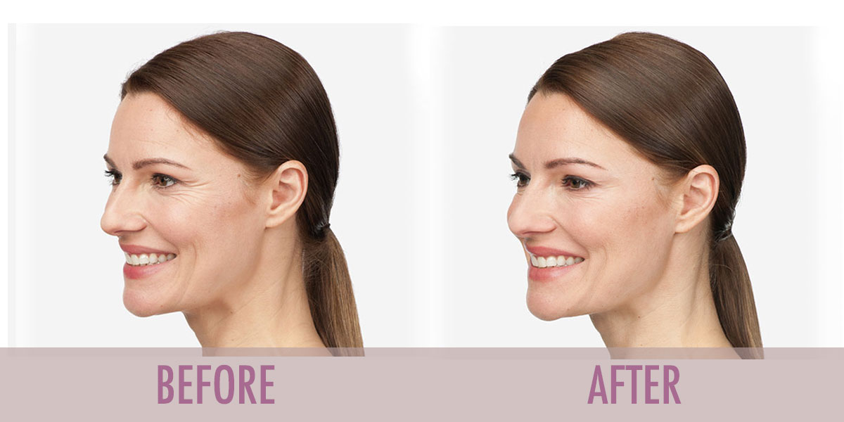 Before and after Botox Crows Feet treatment.
