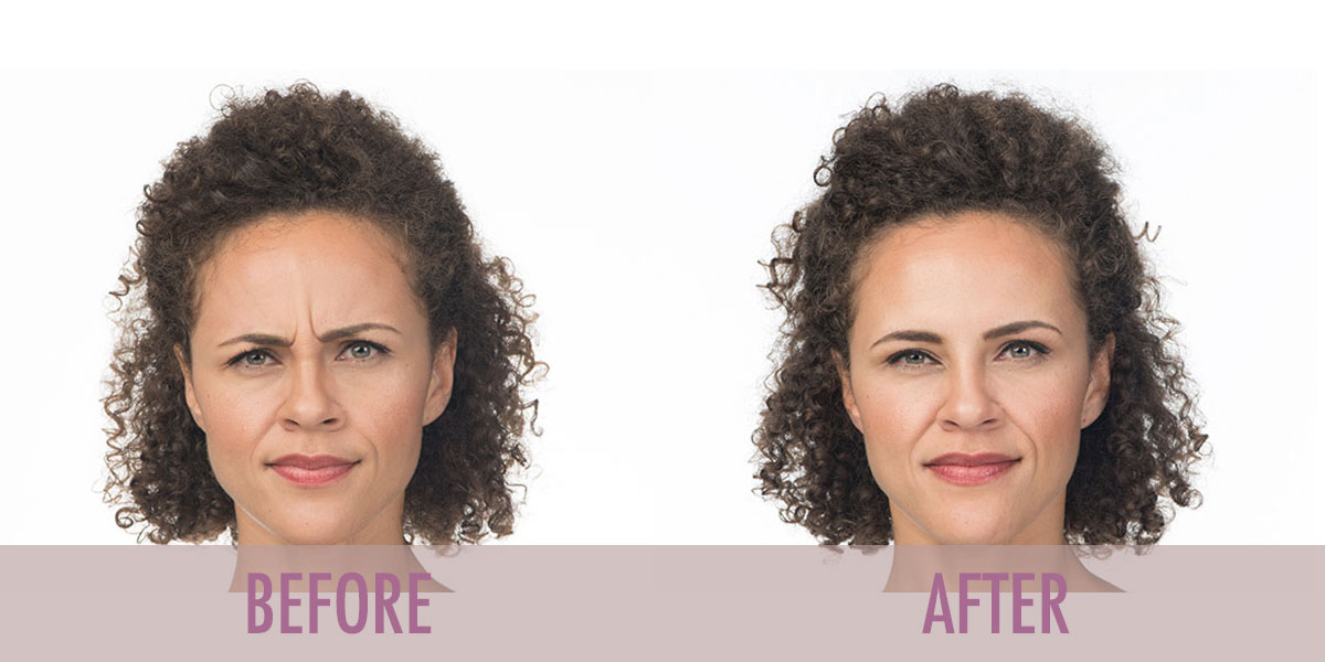 Before and after Botox Frown Lines treatment.