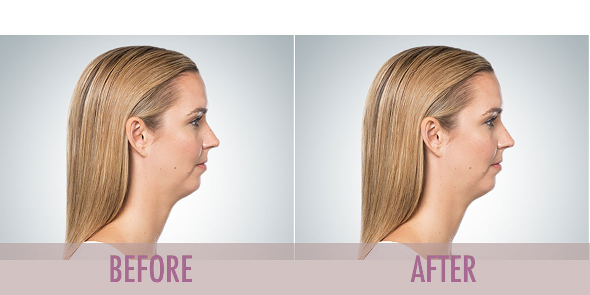 before-after-kybella-2