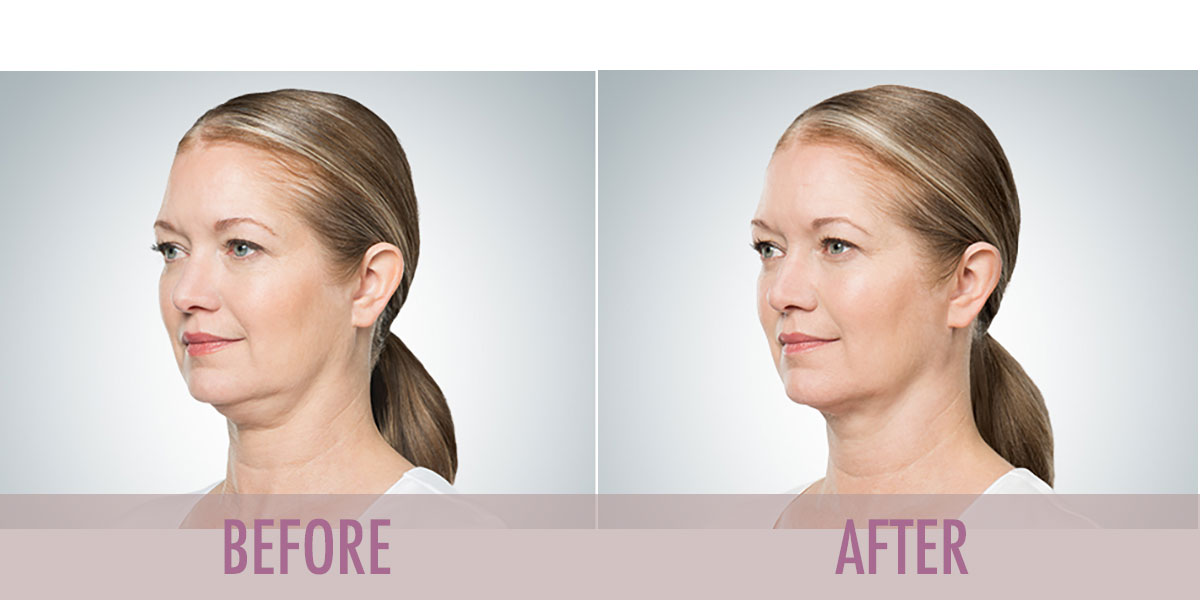 before-after-kybella