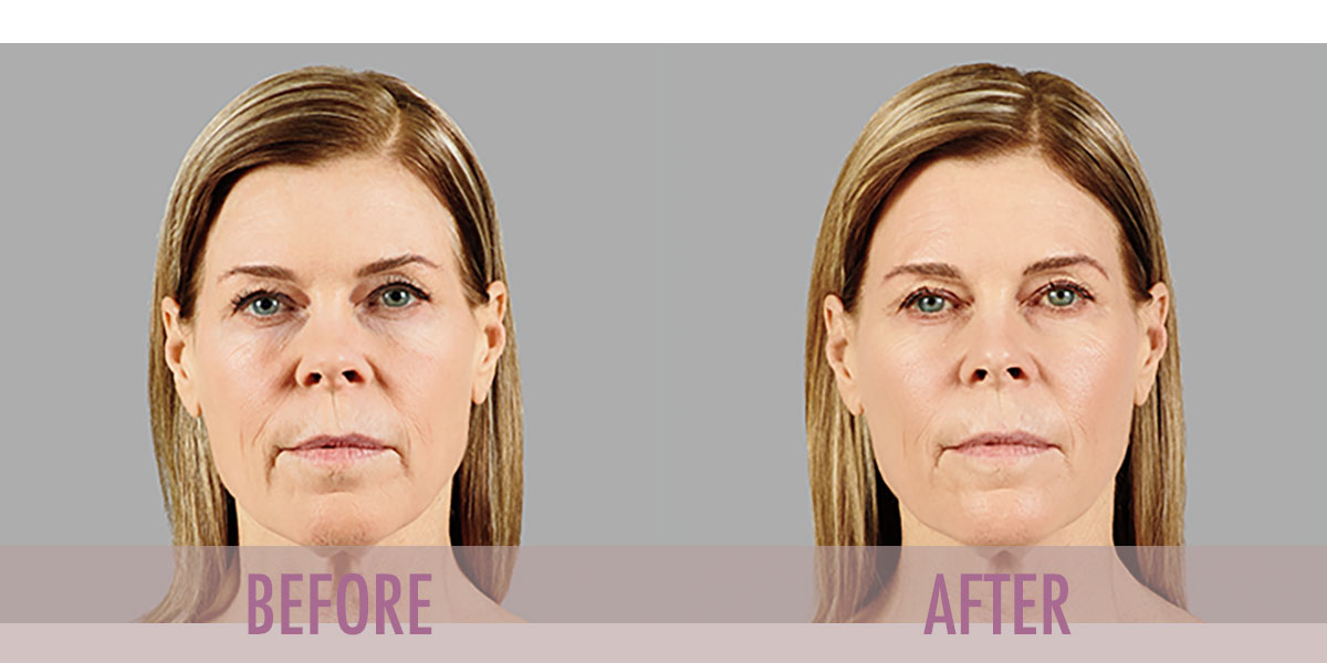 Before and after Voluma Treatment.
